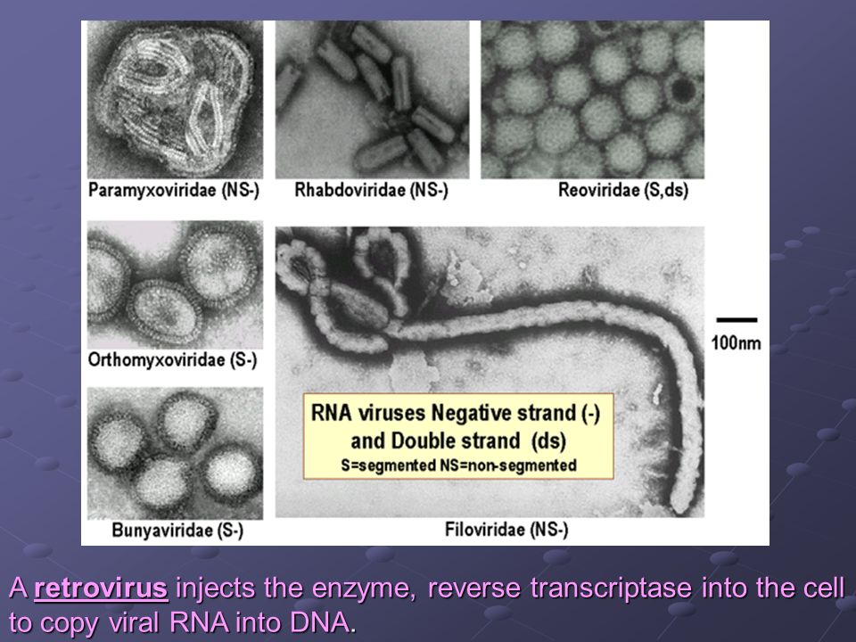 A retrovirus injects the enzyme, reverse transcriptase into the cell
