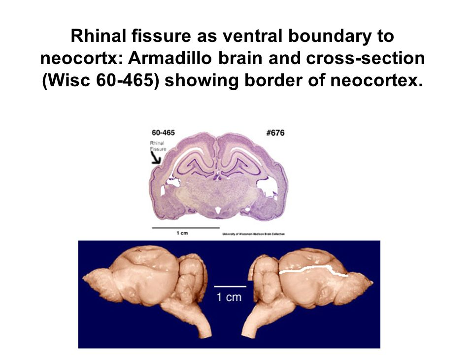 Rhinal fissure as ventral boundary to neocortx: Armadillo brain and cross-section (Wisc ) showing border of neocortex.