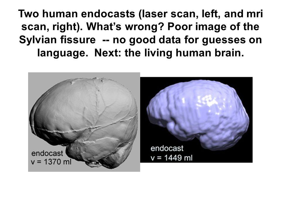 Two human endocasts (laser scan, left, and mri scan, right)