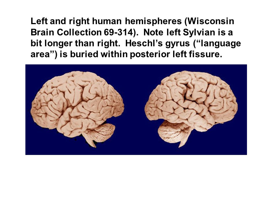 Left and right human hemispheres (Wisconsin Brain Collection )