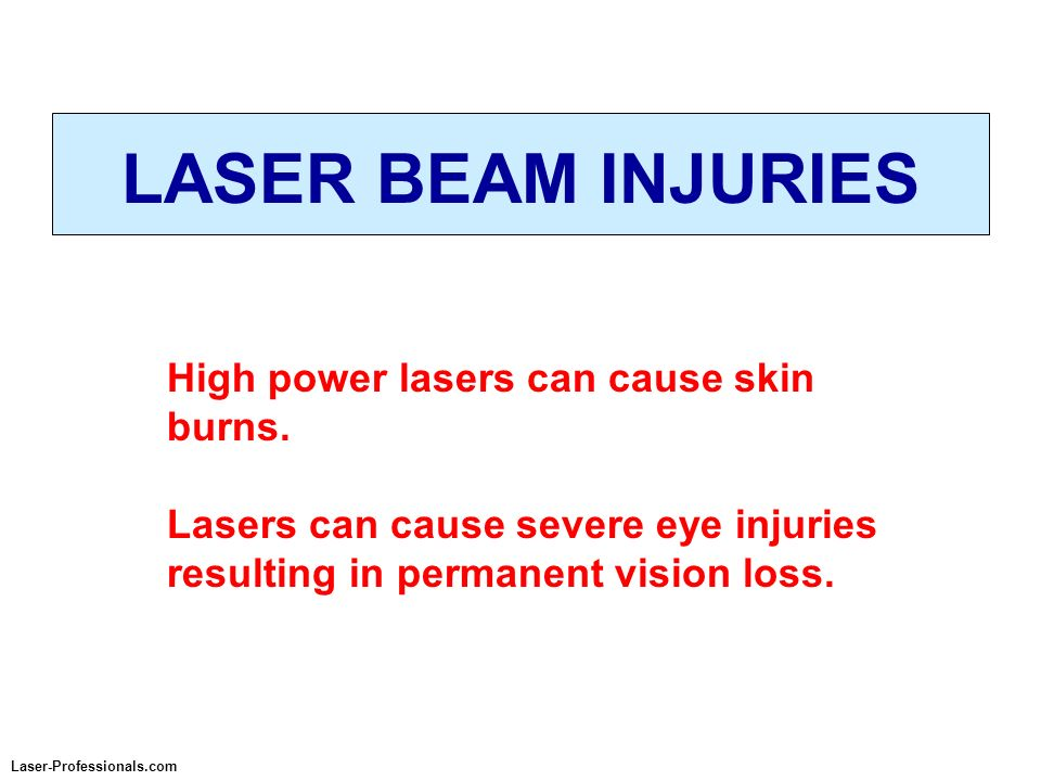 LASER BEAM INJURIES High power lasers can cause skin burns.