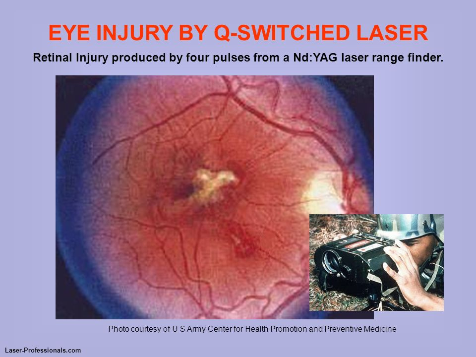 EYE INJURY BY Q-SWITCHED LASER