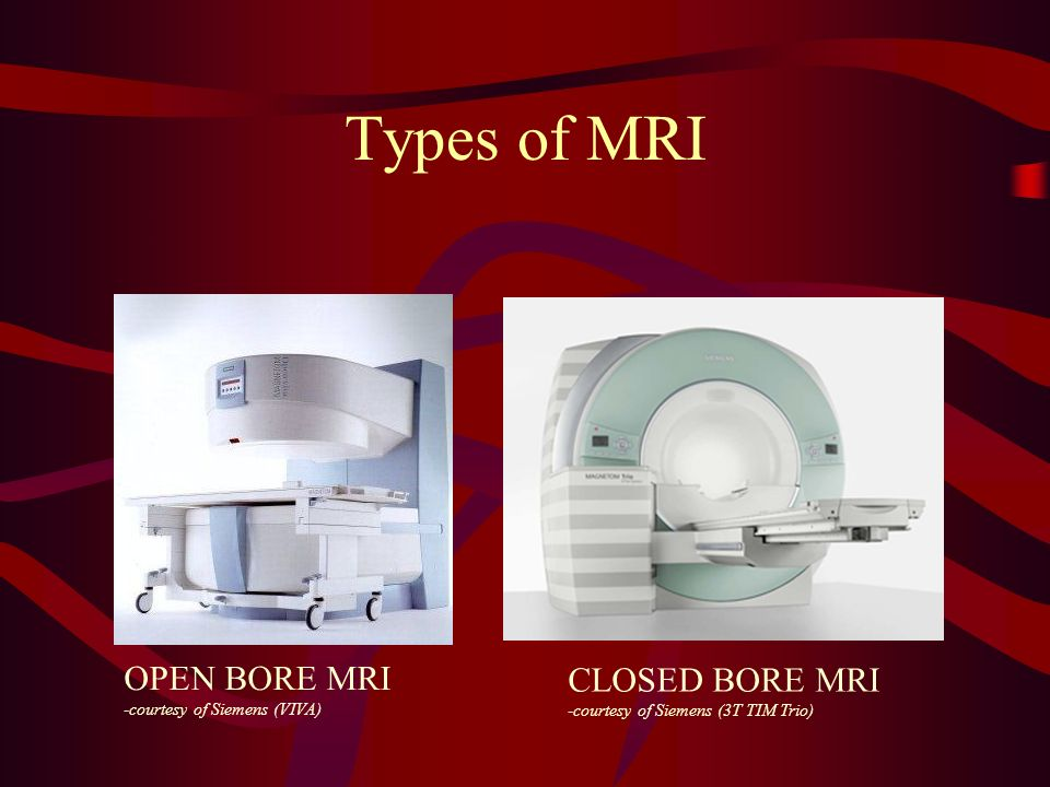 Types of MRI OPEN BORE MRI CLOSED BORE MRI -courtesy of Siemens (VIVA)