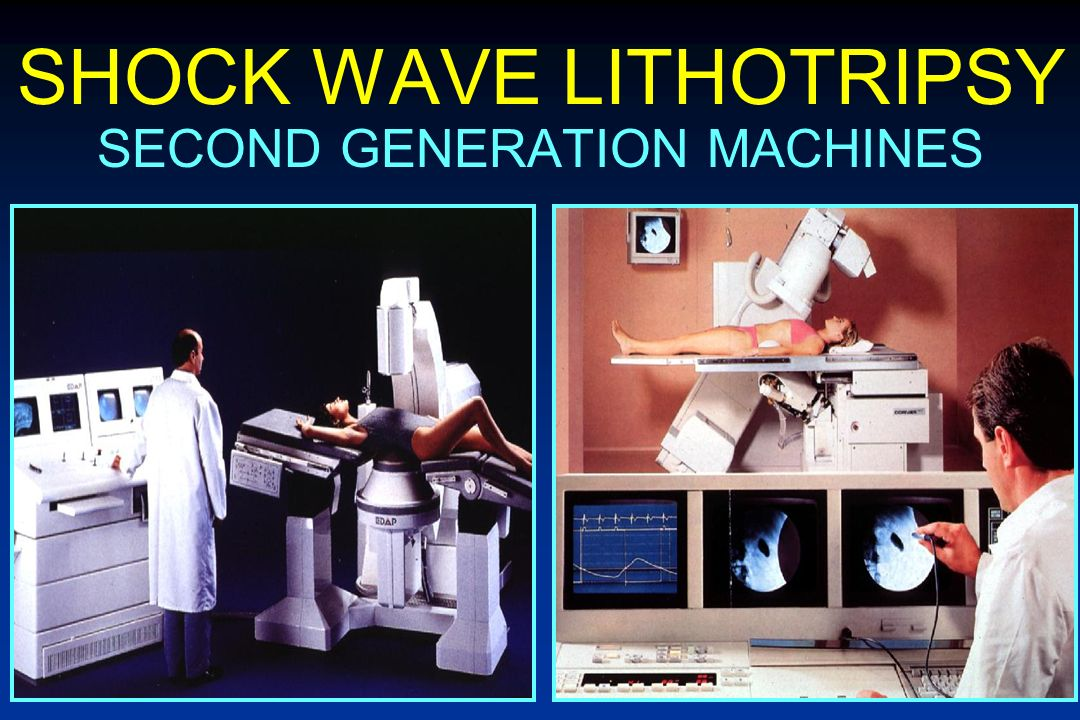 SHOCK WAVE LITHOTRIPSY