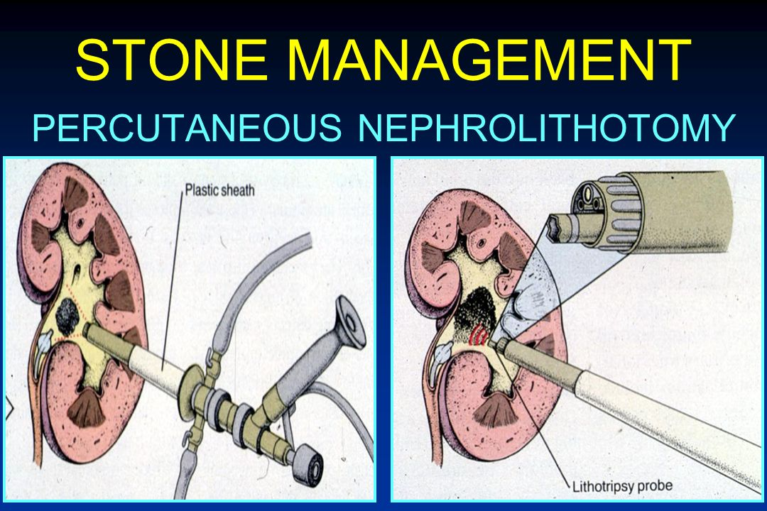 PERCUTANEOUS NEPHROLITHOTOMY