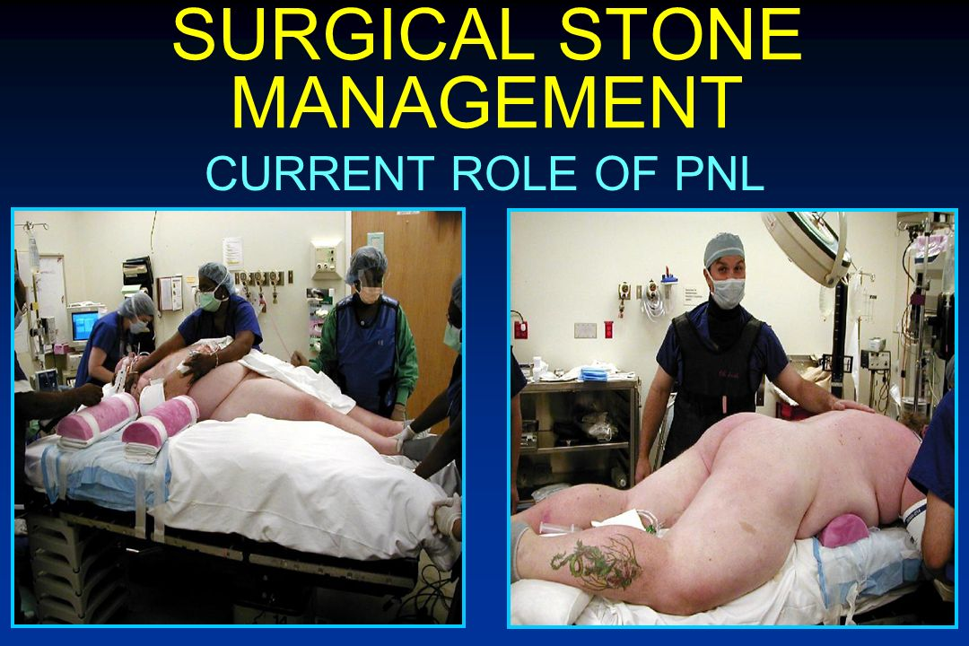SURGICAL STONE MANAGEMENT