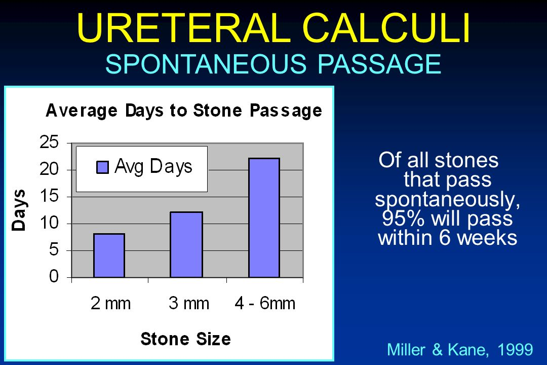 Of all stones that pass spontaneously, 95% will pass within 6 weeks