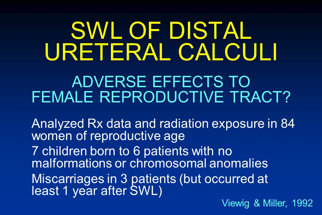 SWL OF DISTAL URETERAL CALCULI