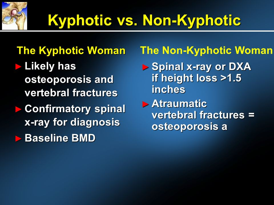 Kyphotic vs. Non-Kyphotic
