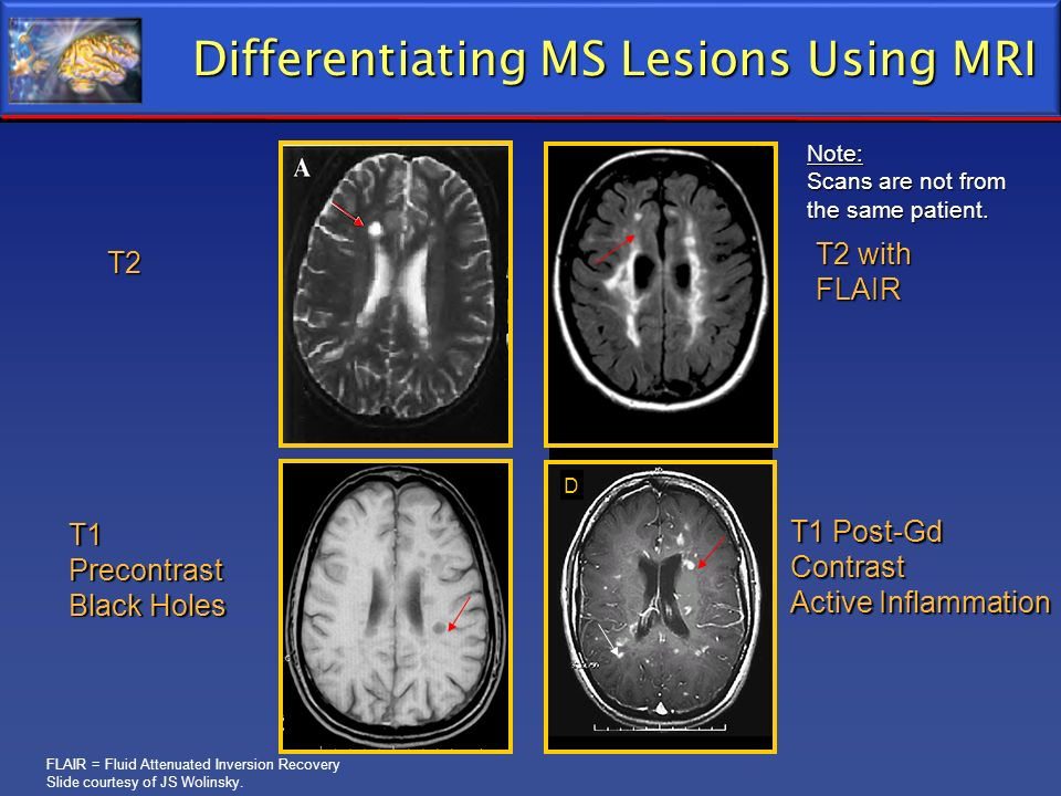 Differentiating MS Lesions Using MRI