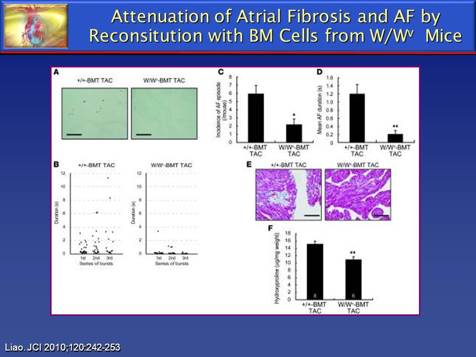 Attenuation of Atrial Fibrosis and AF by Reconsitution with BM Cells from W/Wv Mice