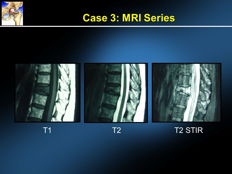 Case 3: MRI Series T1 T2 T2 STIR
