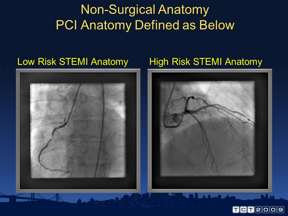 Non-Surgical Anatomy PCI Anatomy Defined as Below