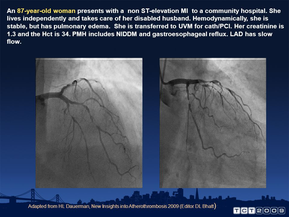 An 87-year-old woman presents with a non ST-elevation MI to a community hospital. She lives independently and takes care of her disabled husband. Hemodynamically, she is stable, but has pulmonary edema. She is transferred to UVM for cath/PCI. Her creatinine is 1.3 and the Hct is 34. PMH includes NIDDM and gastroesophageal reflux. LAD has slow flow.