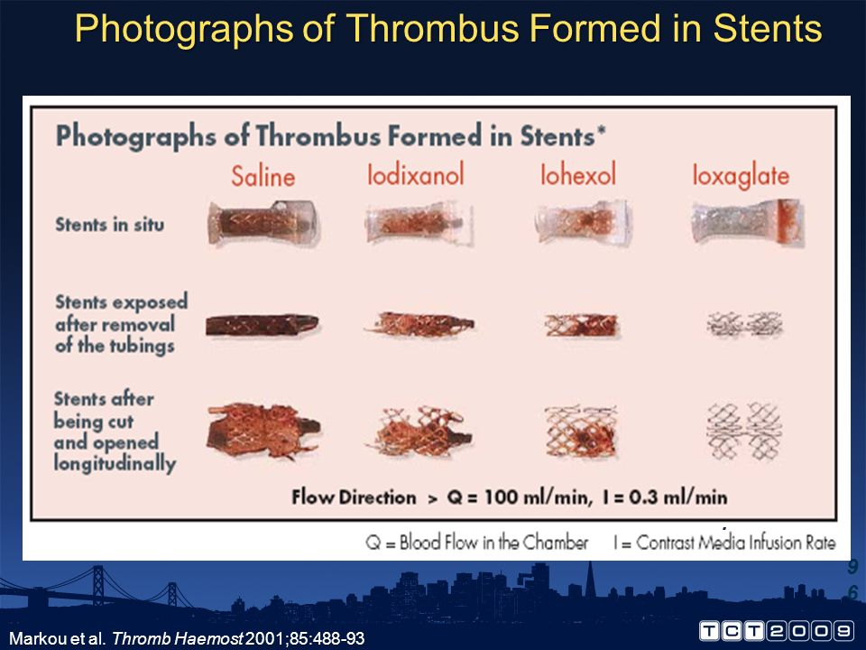 Photographs of Thrombus Formed in Stents
