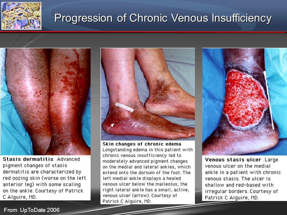 Progression of Chronic Venous Insufficiency