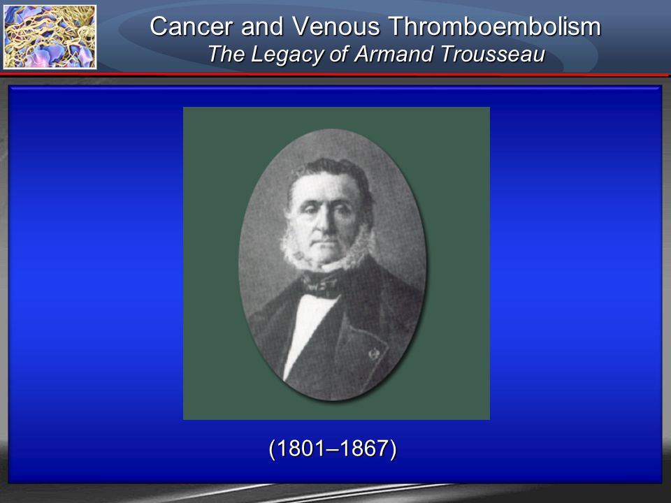 Cancer and Venous Thromboembolism The Legacy of Armand Trousseau