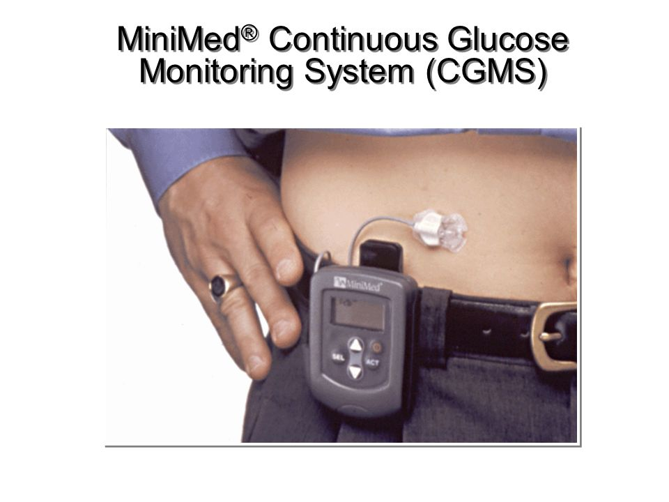 MiniMed® Continuous Glucose Monitoring System (CGMS)