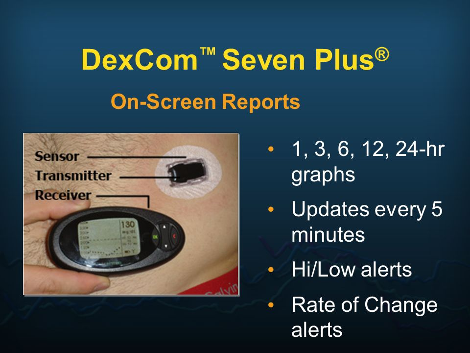 DexCom™ Seven Plus® On-Screen Reports 1, 3, 6, 12, 24-hr graphs