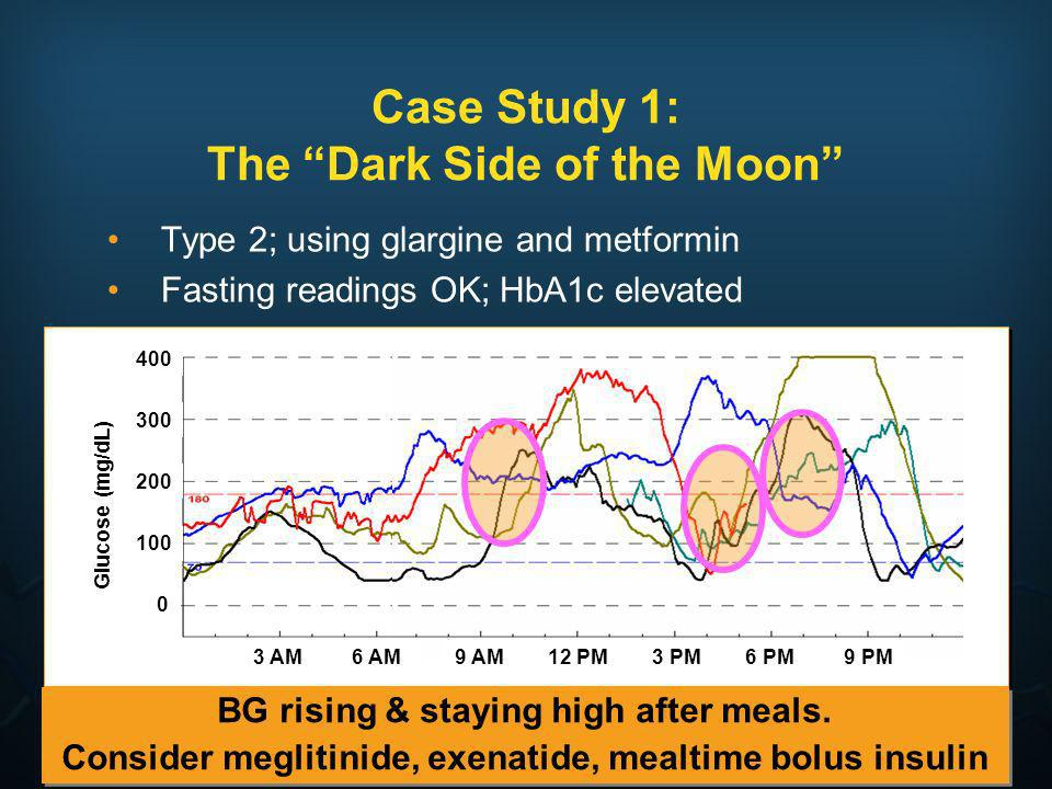 Case Study 1: The Dark Side of the Moon