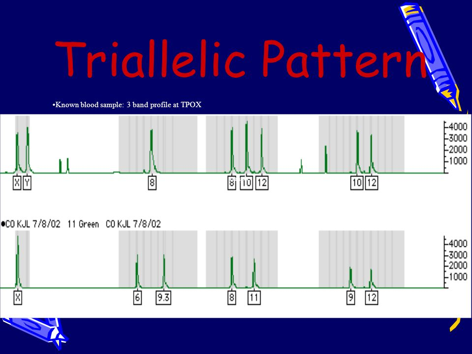 Triallelic Pattern Known blood sample: 3 band profile at TPOX