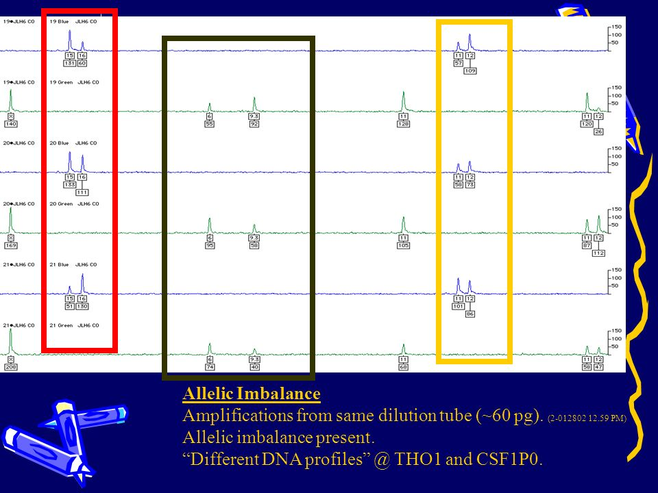 Allelic Imbalance Amplifications from same dilution tube (~60 pg). ( PM) Allelic imbalance present.