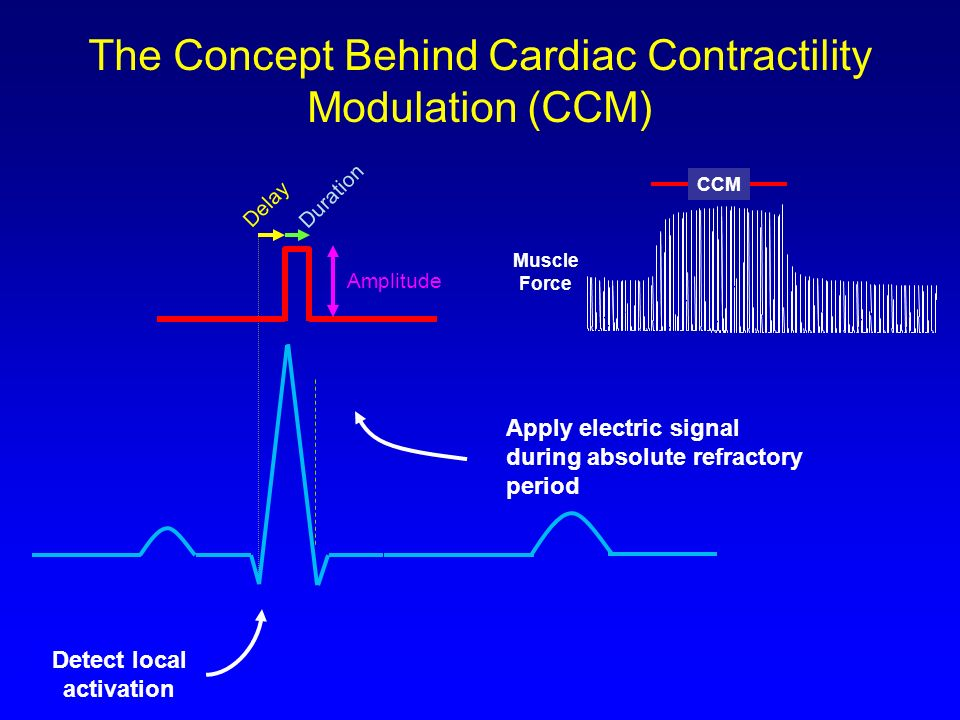 The Concept Behind Cardiac Contractility Modulation (CCM)