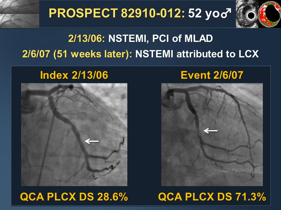 2/6/07 (51 weeks later): NSTEMI attributed to LCX