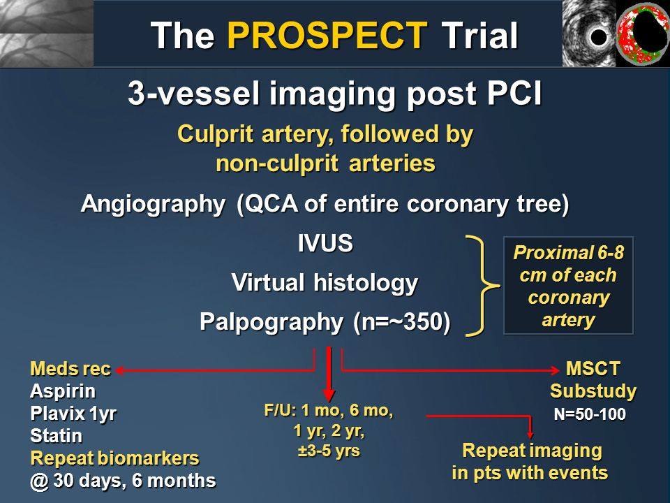 3-vessel imaging post PCI