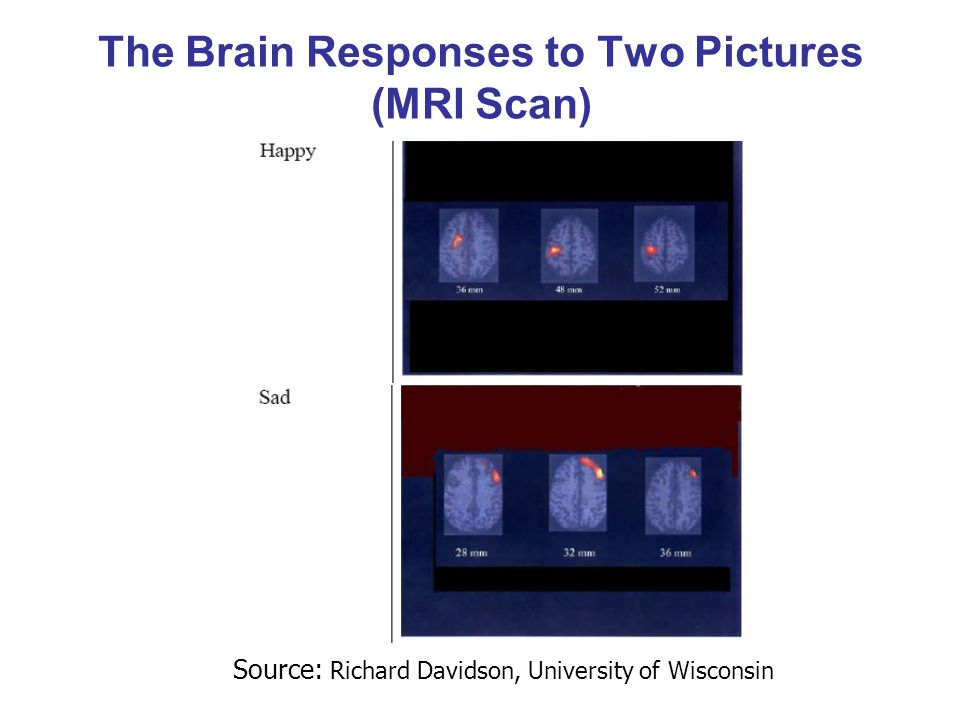 The Brain Responses to Two Pictures (MRI Scan)