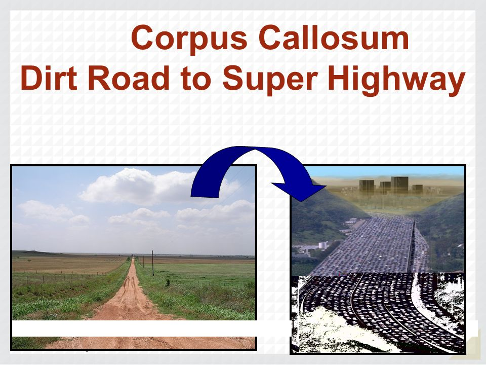 Corpus Callosum Dirt Road to Super Highway