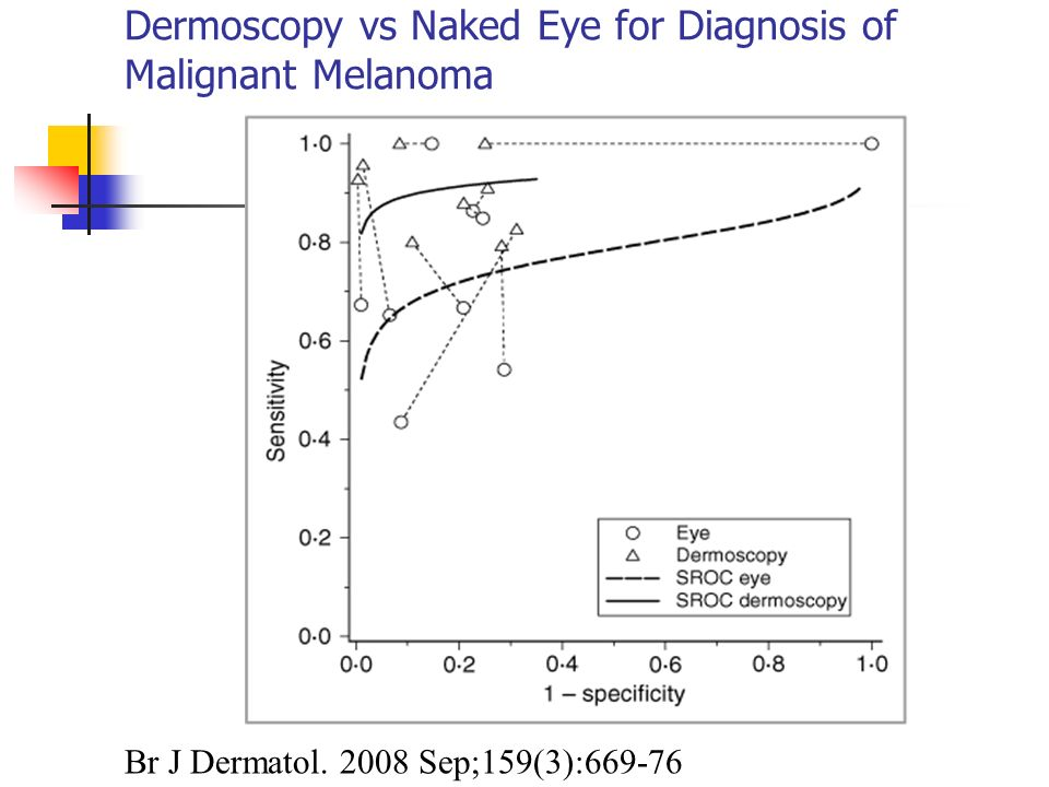 Dermoscopy vs Naked Eye for Diagnosis of Malignant Melanoma