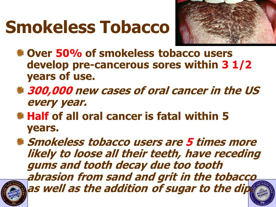 Smokeless Tobacco Over 50% of smokeless tobacco users develop pre-cancerous sores within 3 1/2 years of use.