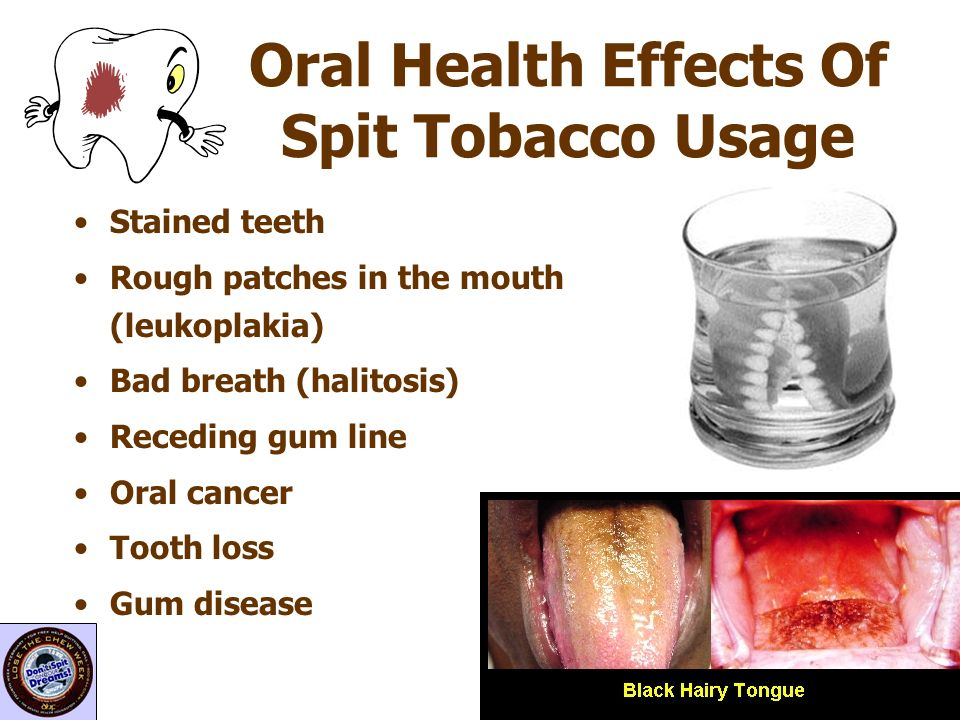 Oral Health Effects Of Spit Tobacco Usage
