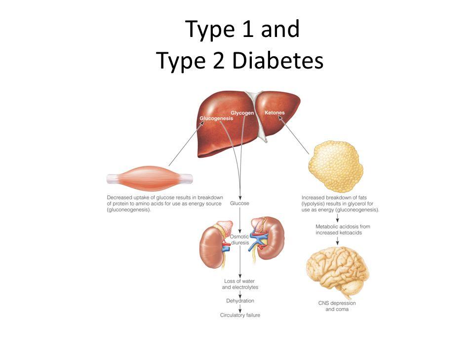 Nursing Care of Clients with Diabetes Mellitus. - ppt video online ...