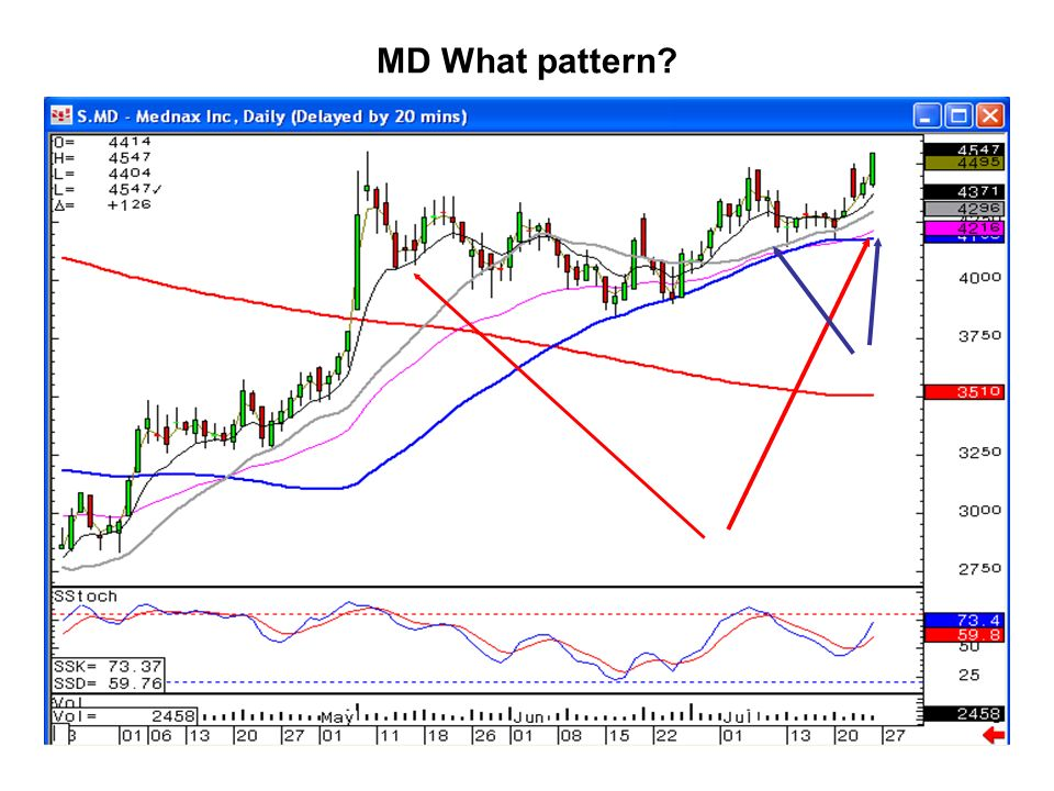 MD What pattern