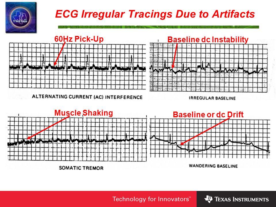 A Precision Low-Level DAS/ECG Cardiotachometer Demo Board