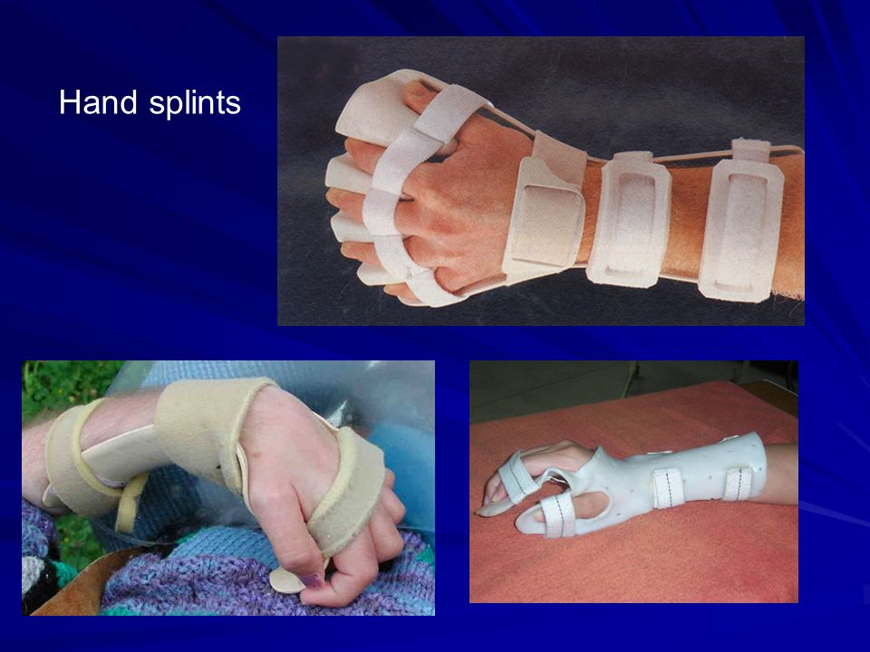 Rehabilitation Of Patients With Hemiplegia Ppt Video Online Download