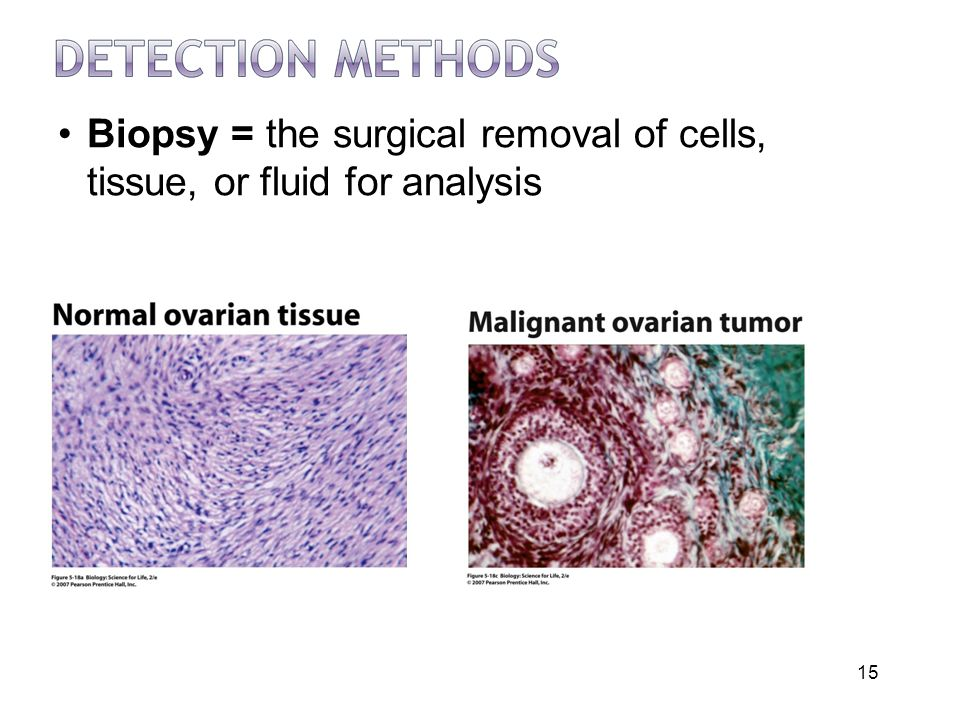 Biopsy = the surgical removal of cells, tissue, or fluid for analysis