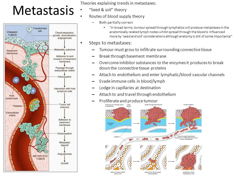 Metastasis Steps to metastases: