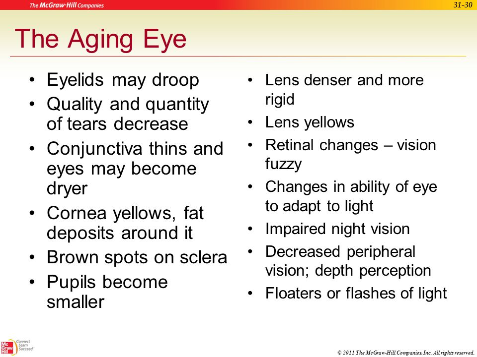 The Aging Eye Eyelids may droop Quality and quantity of tears decrease