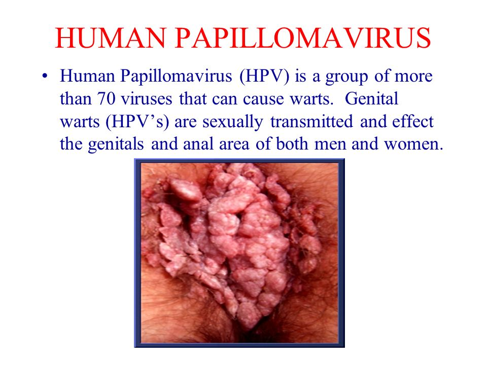Is hpv virus only sexually transmitted