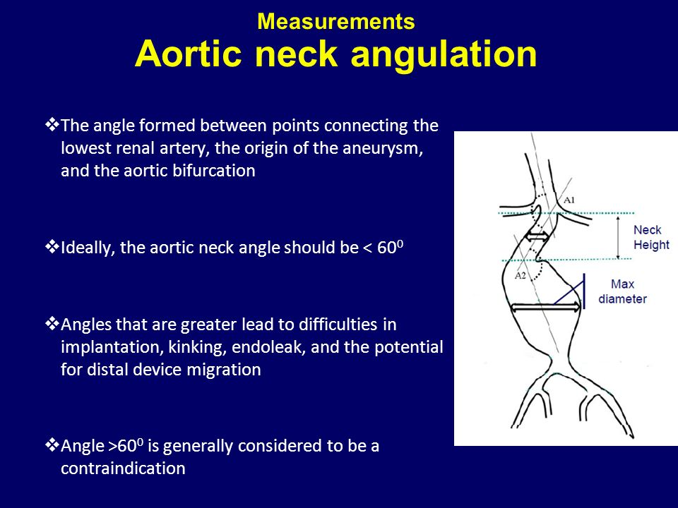 Measurements Aortic neck angulation