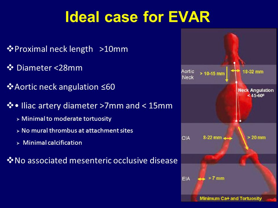 Ideal case for EVAR Proximal neck length >10mm Diameter <28mm