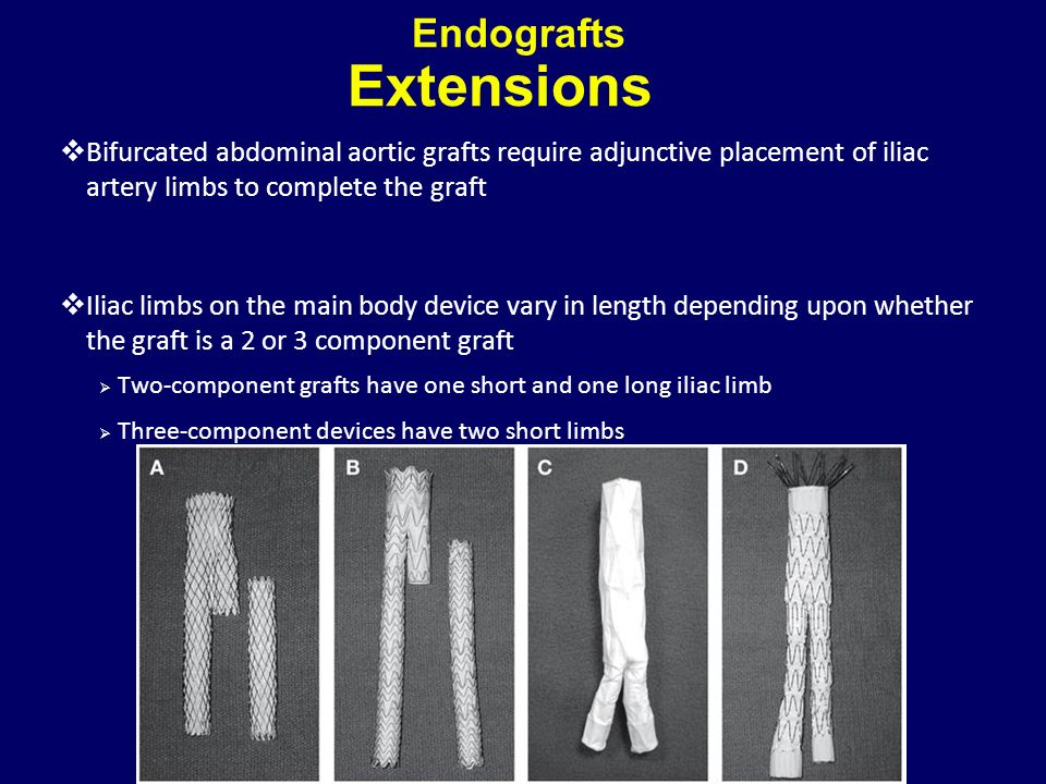 Endografts Extensions