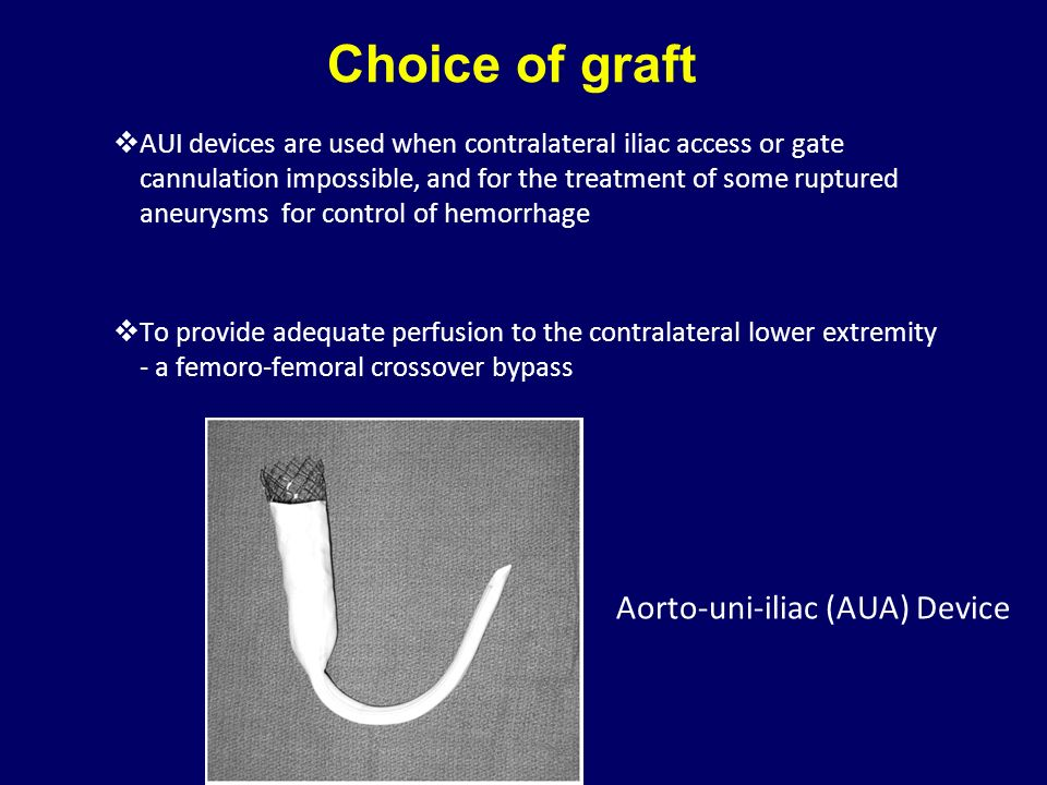 Choice of graft Aorto-uni-iliac (AUA) Device