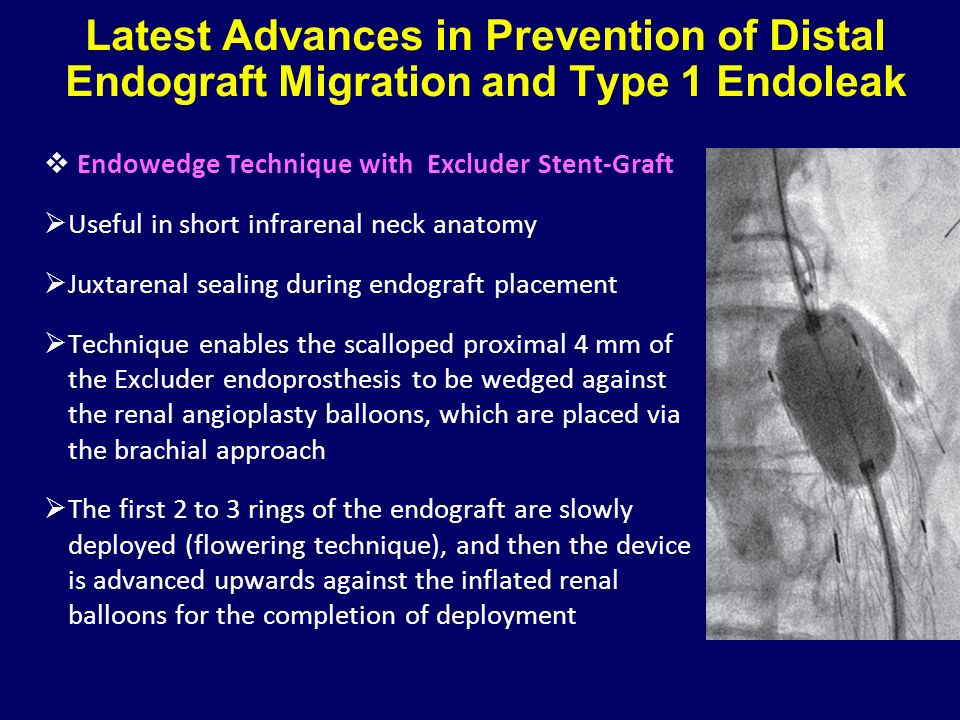 Latest Advances in Prevention of Distal Endograft Migration and Type 1 Endoleak