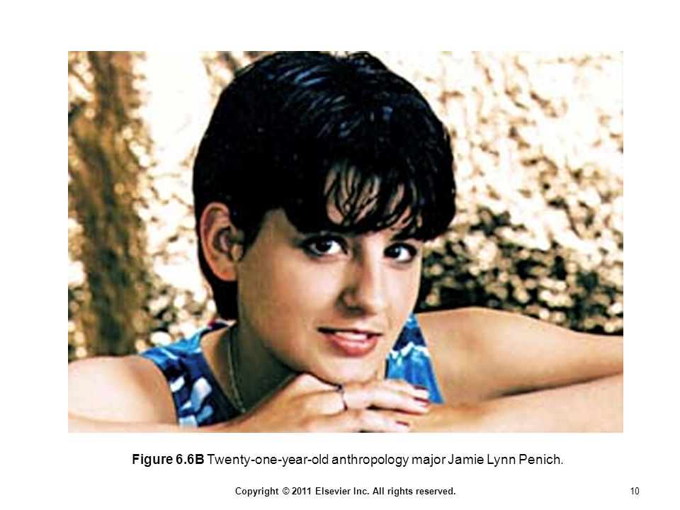 Figure 6.6B Twenty-one-year-old anthropology major Jamie Lynn Penich.