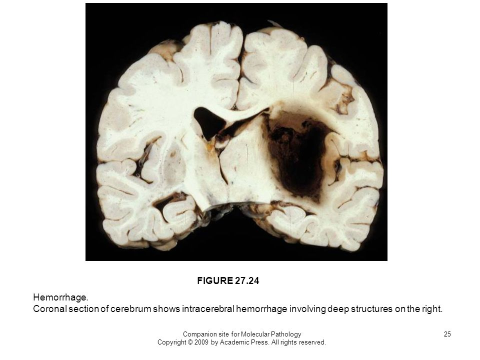 FIGURE 27.24 Hemorrhage. Coronal section of cerebrum shows intracerebral hemorrhage involving deep structures on the right.