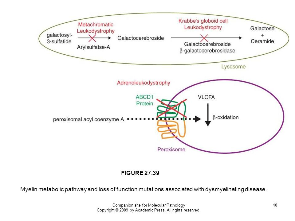 FIGURE 27.39 Myelin metabolic pathway and loss of function mutations associated with dysmyelinating disease.